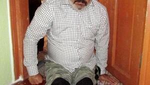 3 yılda iki bacağını kaybetti, hayata küsmedi