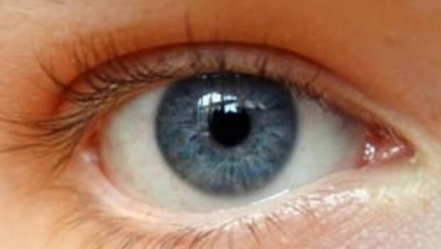 20 saniyede göz rengini değiştiren doktor