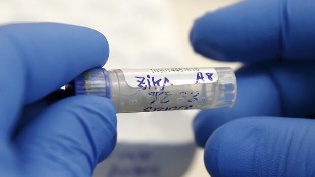 Brezilyalı bilim adamları Zika virüsünün DNA dizilimini keşfetti