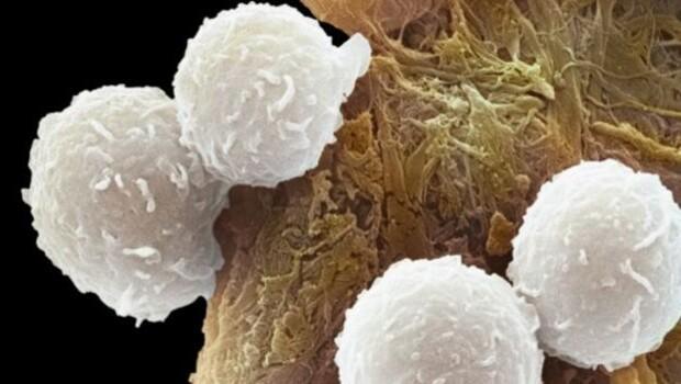 kanser-tedavisinde-devrim-niteliinde-gelime