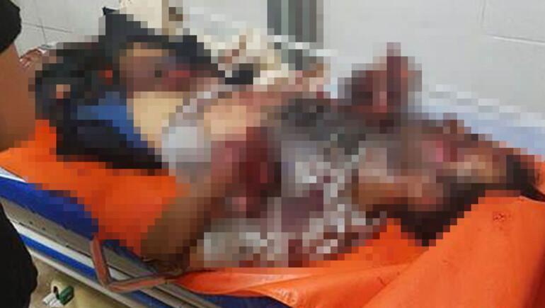 Hatay'da 2 Suriyeli bomba yaparken öldü