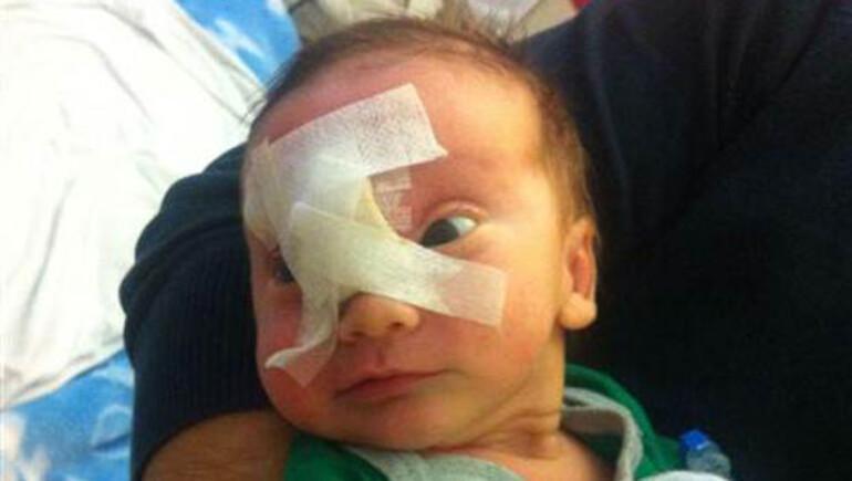İki haftalık bebeğin yüzündeki kitle operasyonla alındı