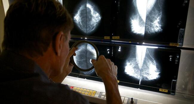 WHO forecasts 81 pct cancer jump in poorer countries