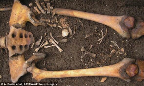 Hamile kadın gömüldükten sonra doğum yapmış
